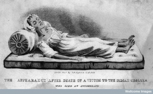 L0008118 A dead victim of cholera at Sunderland in 1832. Coloured lit
